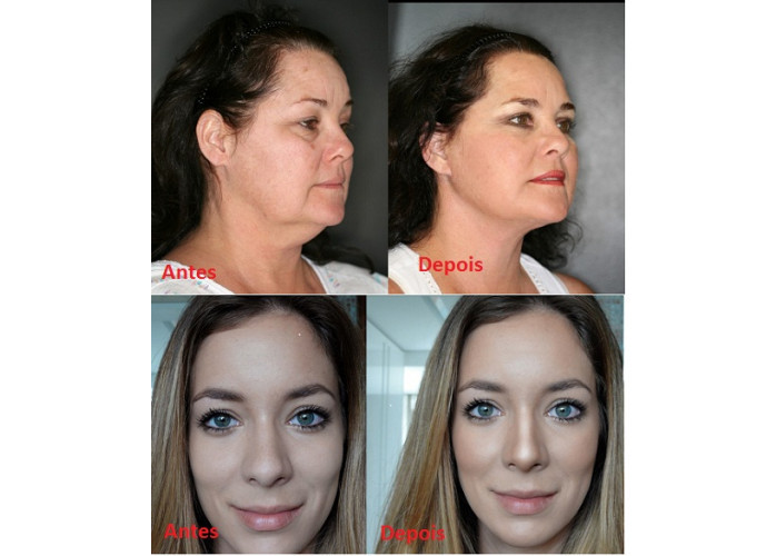 Como afinar o rosto e nariz