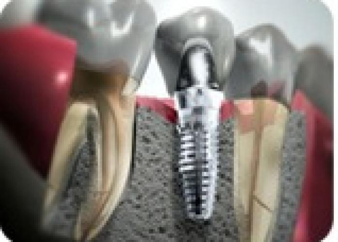 Implantes dentários em Curitiba