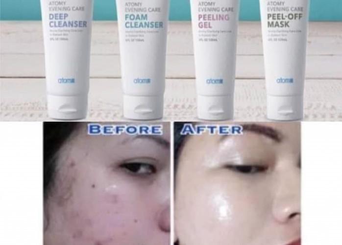 Cuidados com a pele em 4 passos
